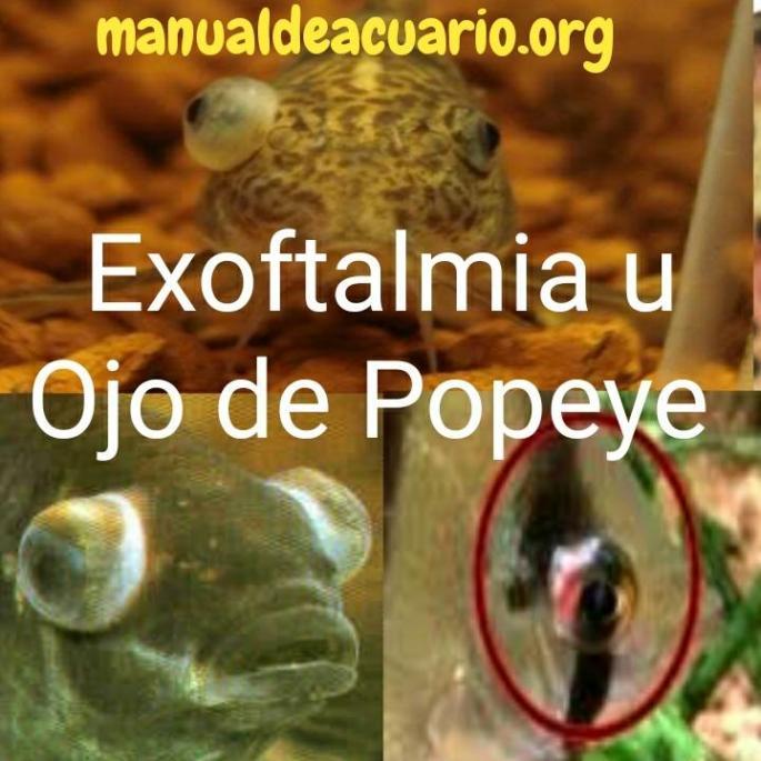 Exoftalmia u Ojo de Popeye